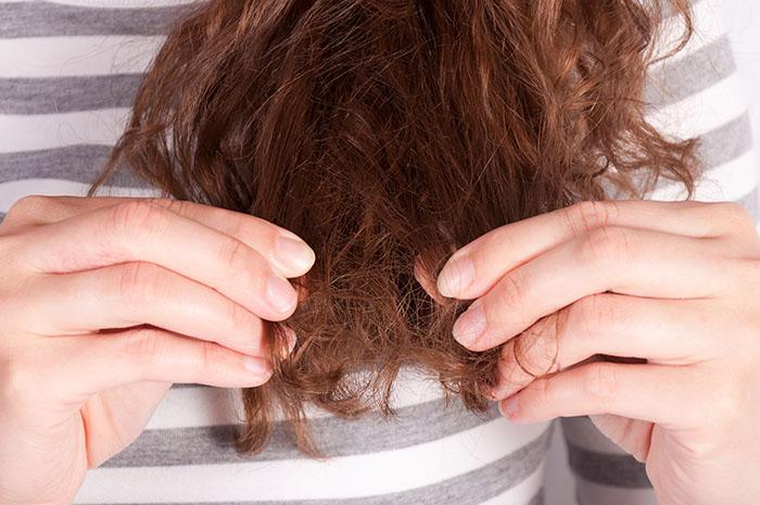 Alimentos que prejudicam a saúde da pele e dos cabelos